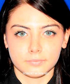 After Rhinoplasty Treatment photo - patient 3