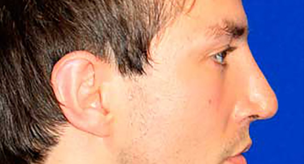 After Treatment photo - Rhinoplasy - male patient 4