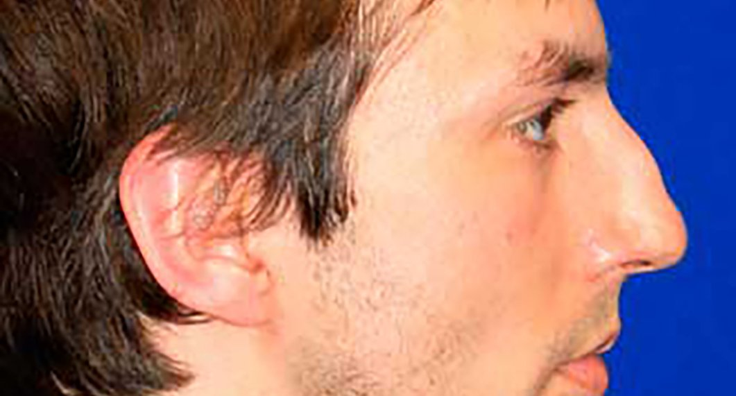 Before Treatment photo - Rhinoplasy - male patient 4