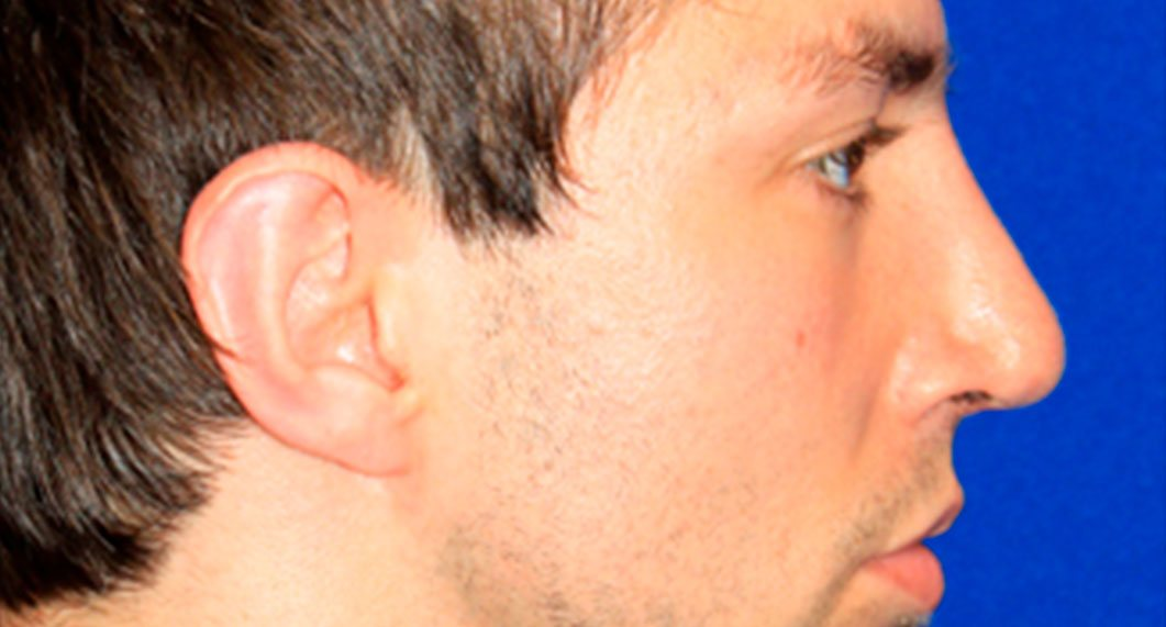 After Treatment photo - Rhinoplasty - male patient 4