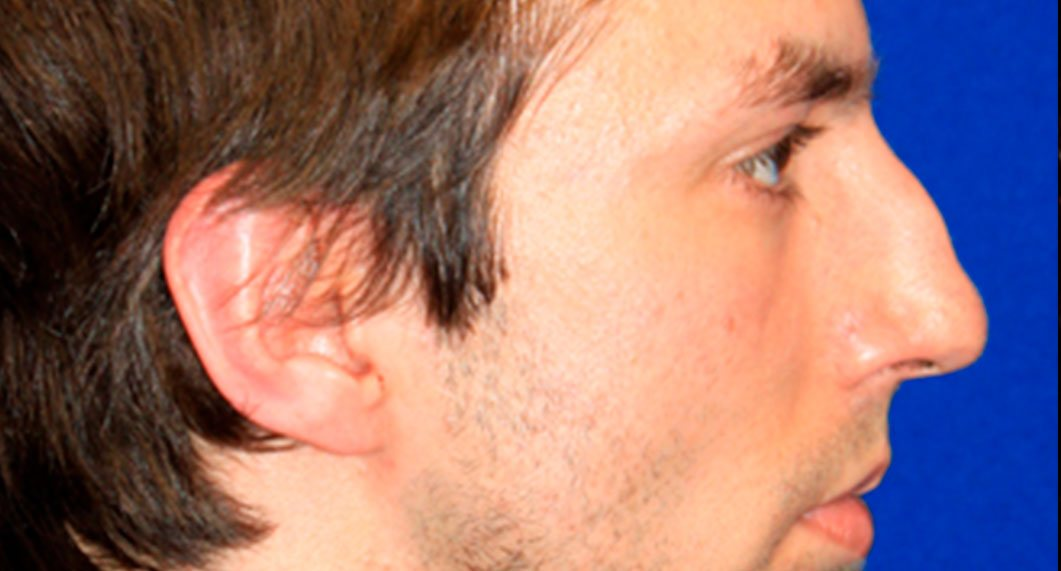 Before Treatment photo - Rhinoplasty - male patient 4