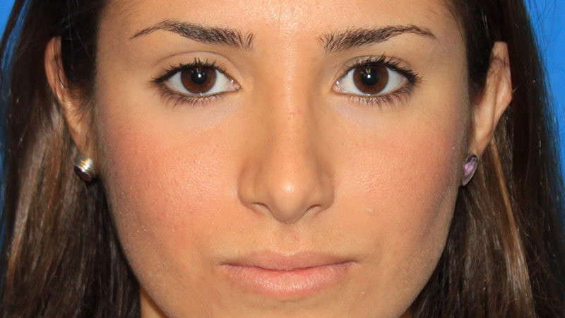 Ultrasound Rhinoplasty. After Treatment photo - patient 1